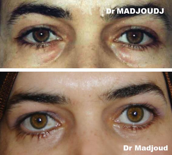 Blépharoplastie par le Docteur Madjoudj Ahcène.