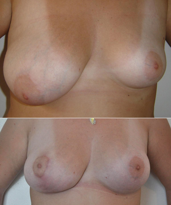 reconstruction du sein par le docteur Madjoudj Ahcène