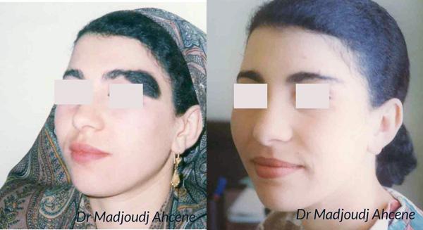 neovus du sourcil par le docteur Madjoudj