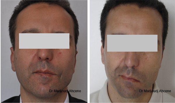 séquelle de paralysie faciale en Algérie Par le docteur Madjoudj