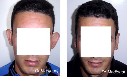 Otoplastie en Algérie par le docteur madjoudj