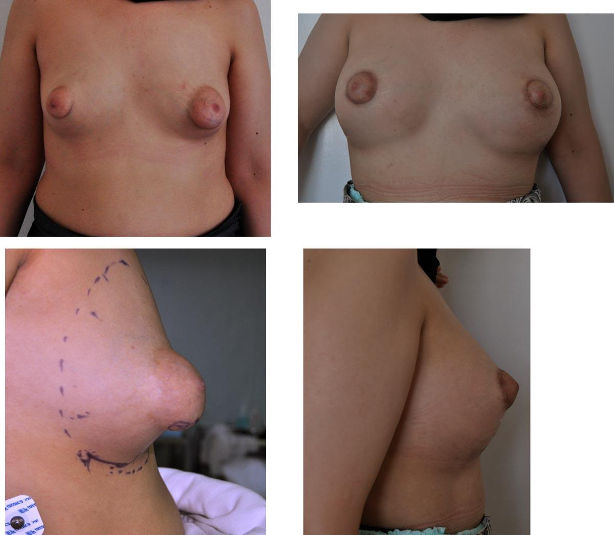 reconstruction d'un sein tubureux par le docteur Madjoudj Ahcène .
