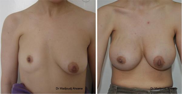 Reconstruction du sein suite à une inégalité mammaire congénitale par le docteur Madjoudj Ahcène .